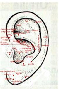 acupuntura en oreja